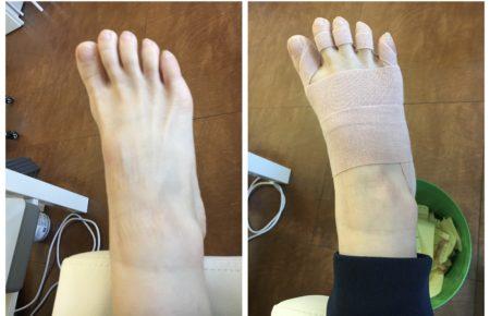 テーピングで足を整えて健康な足作り